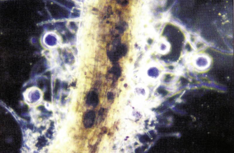 Endo Mykorrhiza